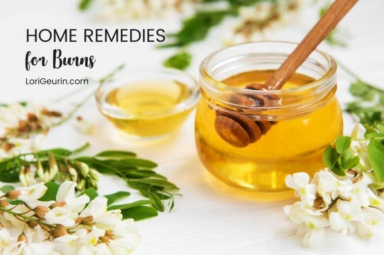 Learn about home remedies for treating burns naturally including honey, aloe vera, coconut oil, lavender essential oil, and raw potatoes.