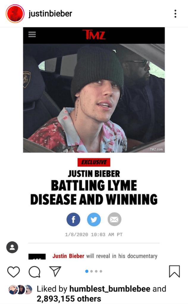Justin Bieber has Lyme disease in a social media post